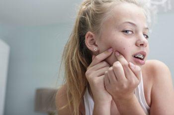 Угревая сыпь у подростков