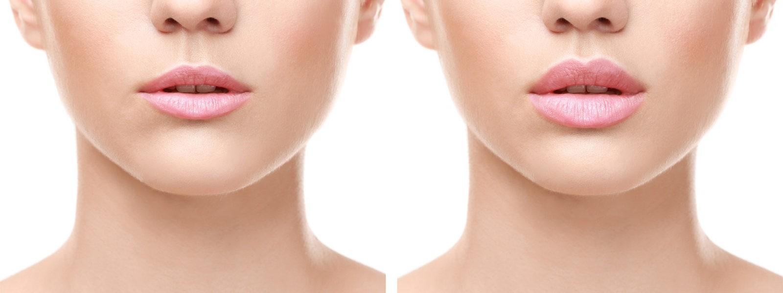 Инъекционная косметология для коррекции формы губ