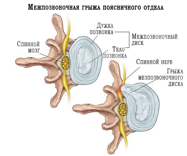 Схематичное изображение позвоночного диска и возникновение межпозвоночной грыжи
